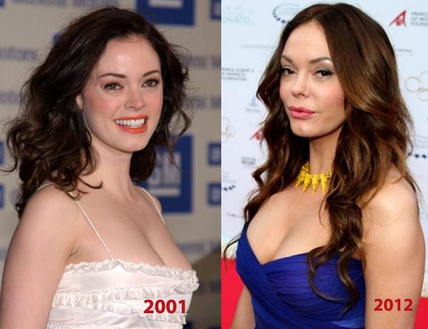 понятно, почему роуз макгоуэн до и после пластики фото потерять голову красоты